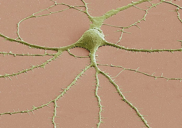 Geek Alert: Brain Cells Under A Microscope!