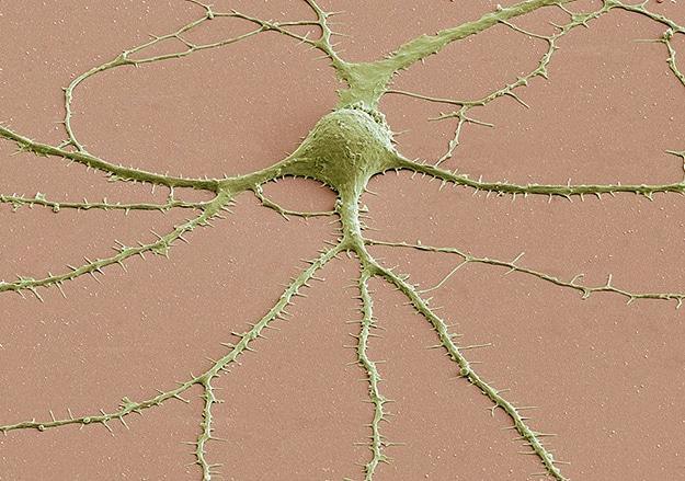Geek Alert: Brain Cells Under A Microscope!