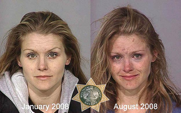 Shocking: The Effects Of Drug Addiction On The Face | Bit Rebels