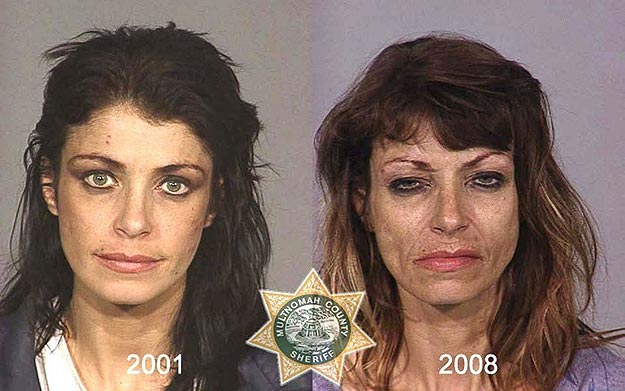 Mug Shots of Drug Addicts