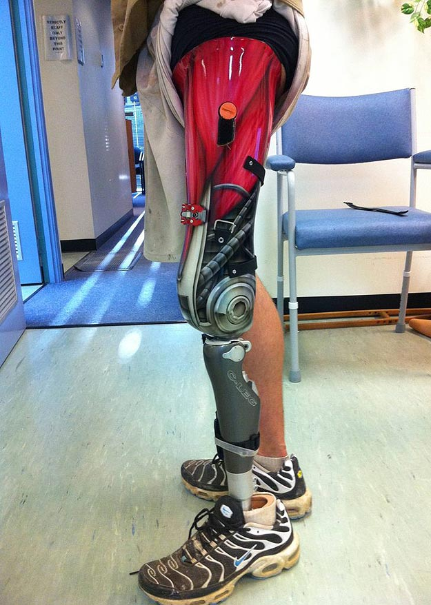 Social Media Saves The Day With A Terminator Leg