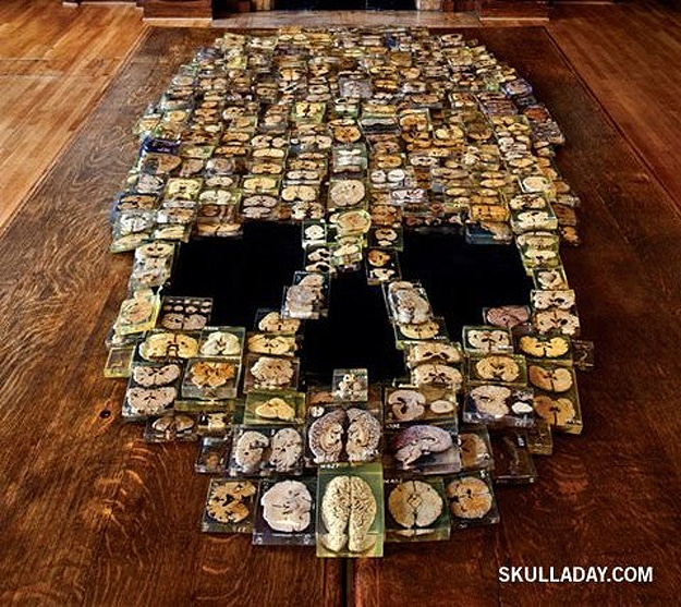 Skull Created From Brain Slices