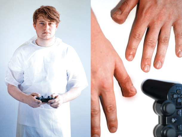 Gaming Injuries: It's A Dangerous Business