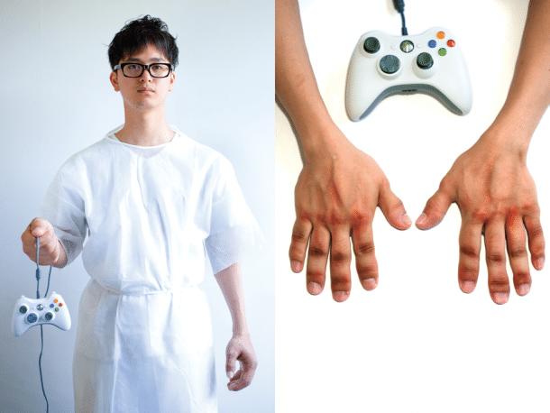 Arcade Gaming Injuries And Diseases