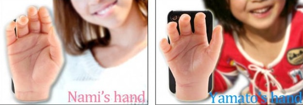 Severed Hand Smartphone Cover