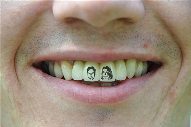 William and Kate Tooth Tattoo