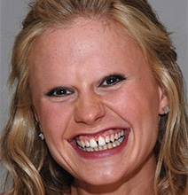 Celebrities Without Eyebrows: A Fun Photoshop Collection