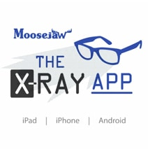 X-Ray iPad App: This Time It's For Real