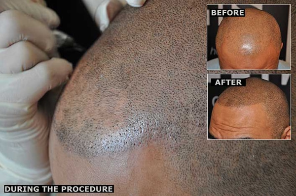 Realistic Hair Tattoos Eliminate Baldness Forever