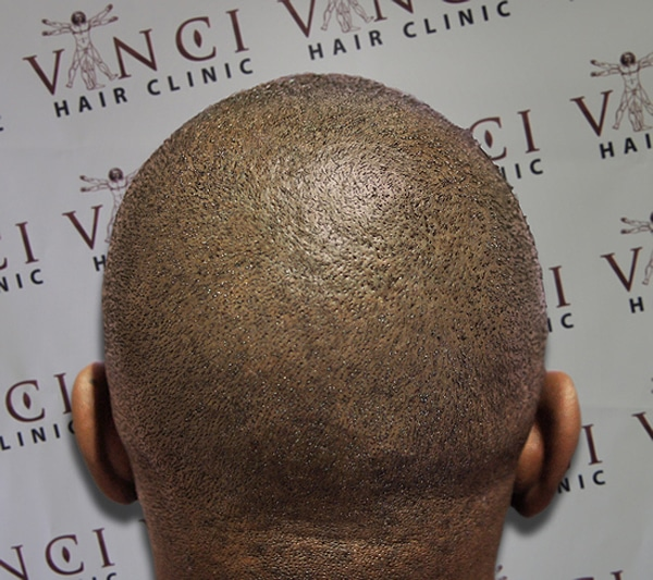 Baldness Solution With Tattoos