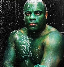 The Man Who Got Green Hulk Skin (Kids, Don't Try This At Home)