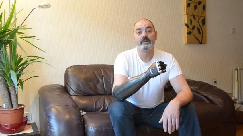 prosthetic-arm-technology-innovation
