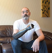 Prosthetic Arm Just Made Luke Skywalker Technology A Reality