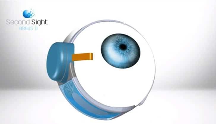 bionic-eye-most-sophisticated-prosthetic