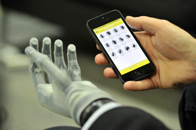 World's First App-Controlled Prosthetic Hand Allows Natural Functions