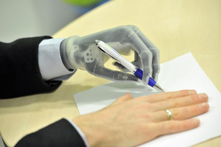 app-controlled-prosthetic-hand-technology