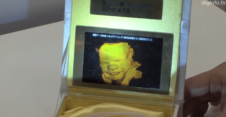 3D Ultrasound Service Offers Printed Baby Hologram Pictures
