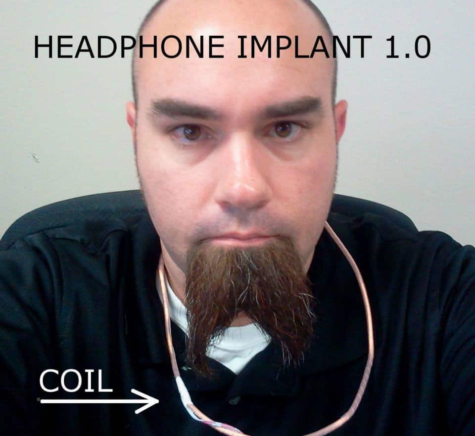 ear-implant-echolocation-tool