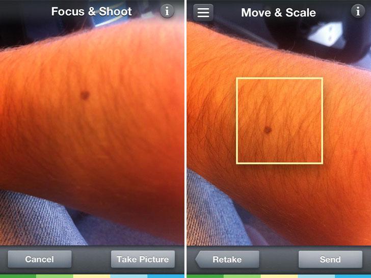skinvision-app-skin-cancer-scanner
