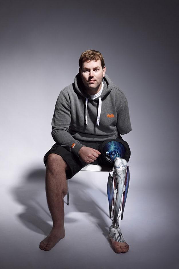 Custom Made Prosthetic Limbs