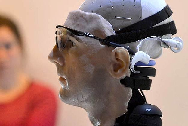 Worlds First Bionic Man