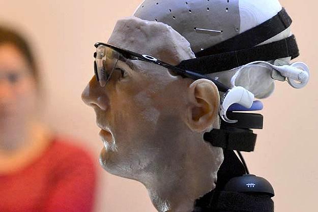 Worlds First Bionic Man
