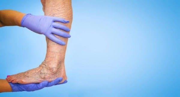 Varicose Vein Treatment Options Article Image