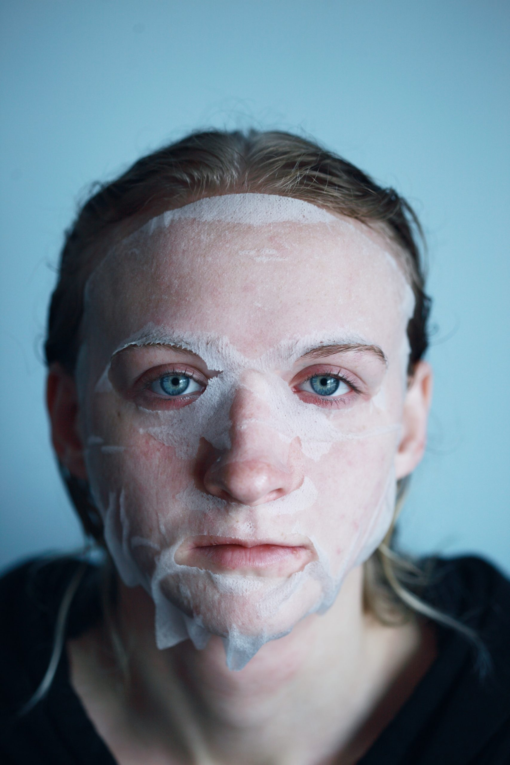 Tips Recover Botox Treatment Article Image