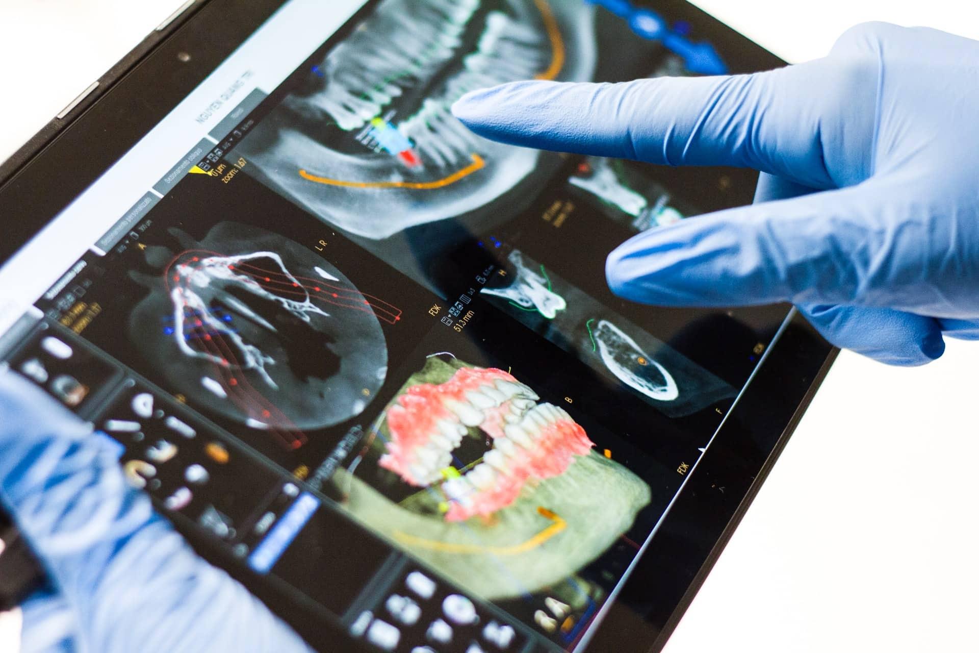 Consider Dental Implant Header Image