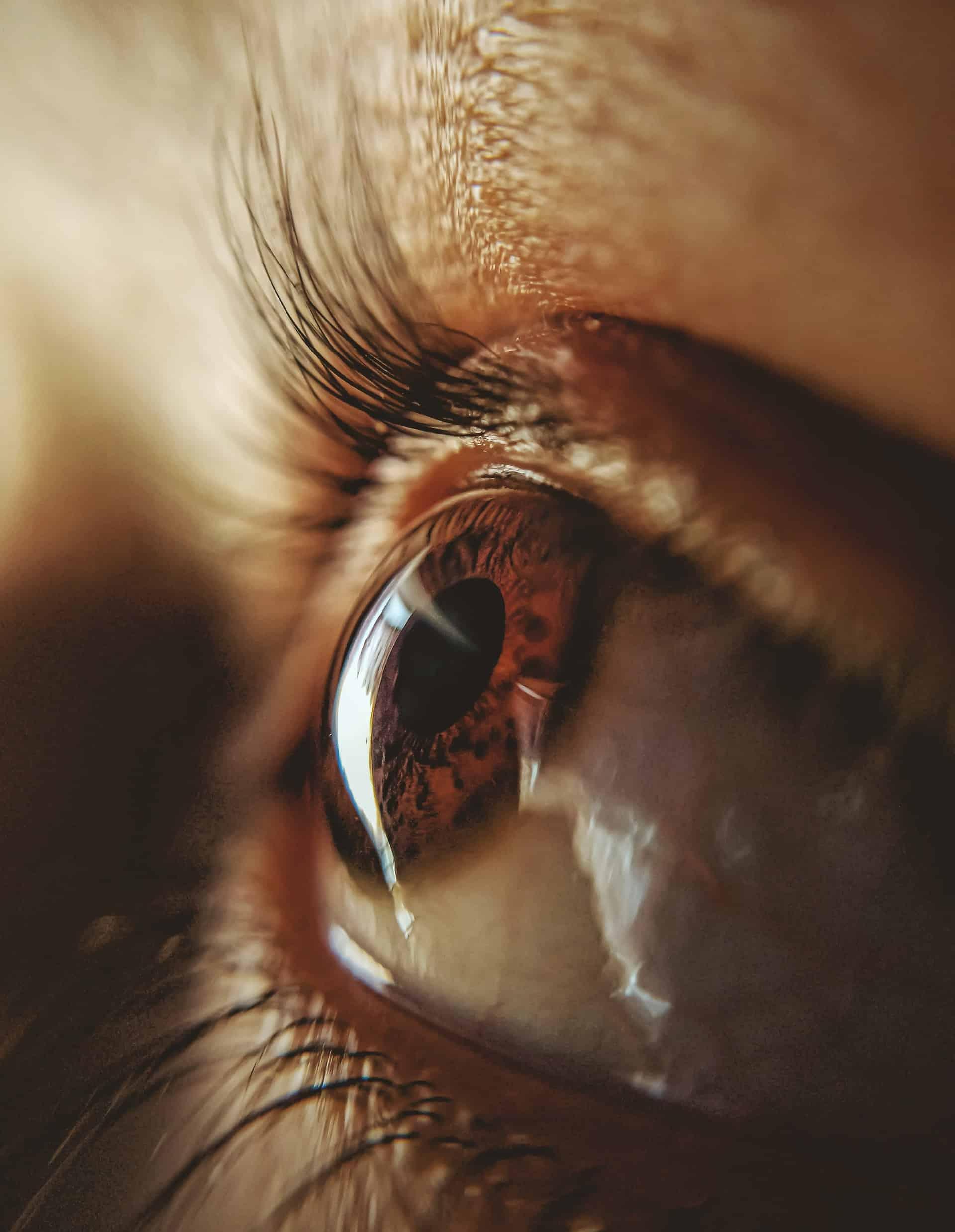 Prepare Cataract Surgery Article Image